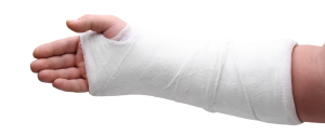 an arm in a cast